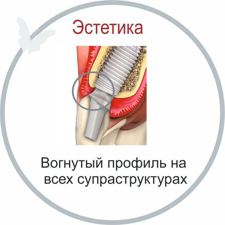 Палтоп имплантат